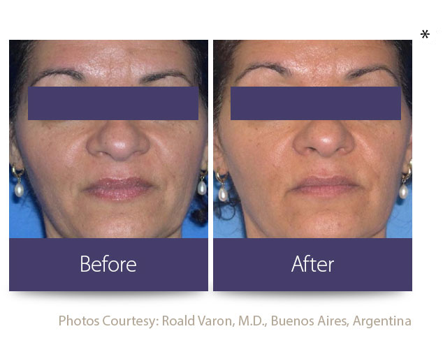 Skin Tightening Burnsville | Burnsville Anti-Aging Treatment