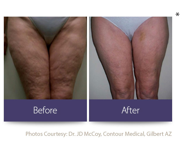 Cellulite Treatment Burnsville | Fat Loss Burnsville
