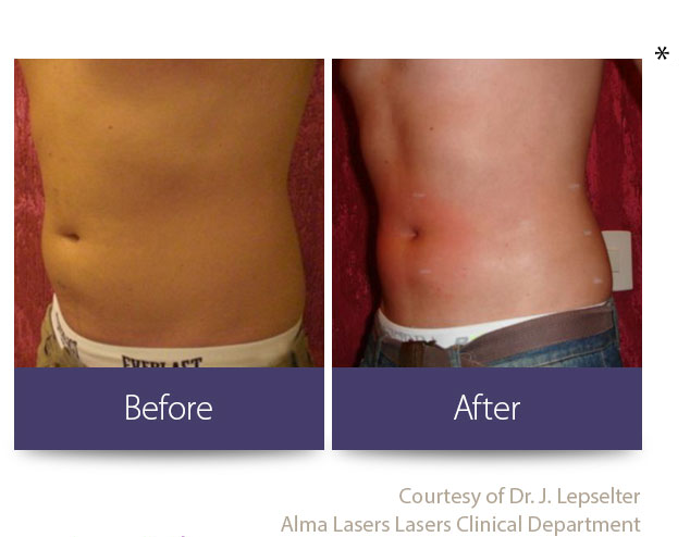 Burnsville Cellulite Reduction | Burnsville Skin Tightening