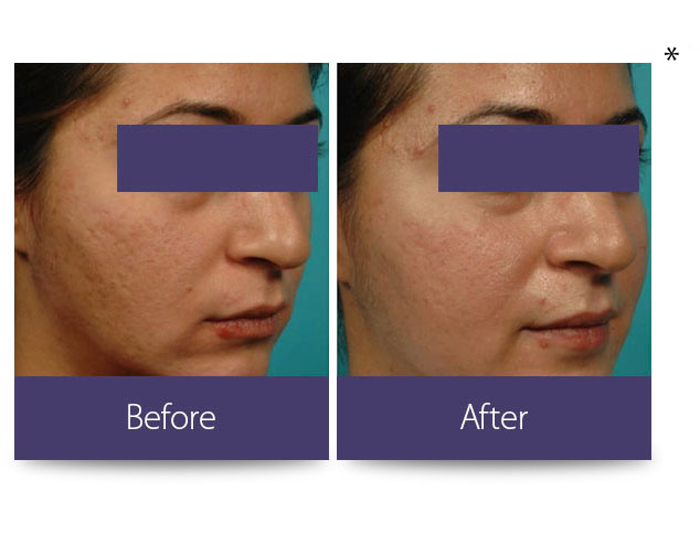 Burnsville Anti-Aging Treatment | Skin Tightening Burnsville